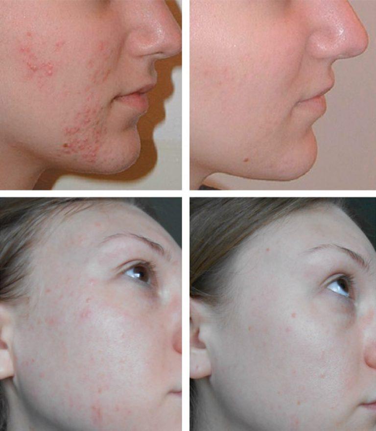 Лицо до и после применения мази Левомеколь