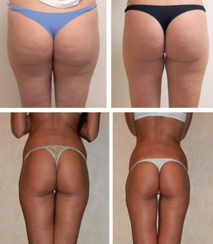 До и после антицеллюлитного обертывания