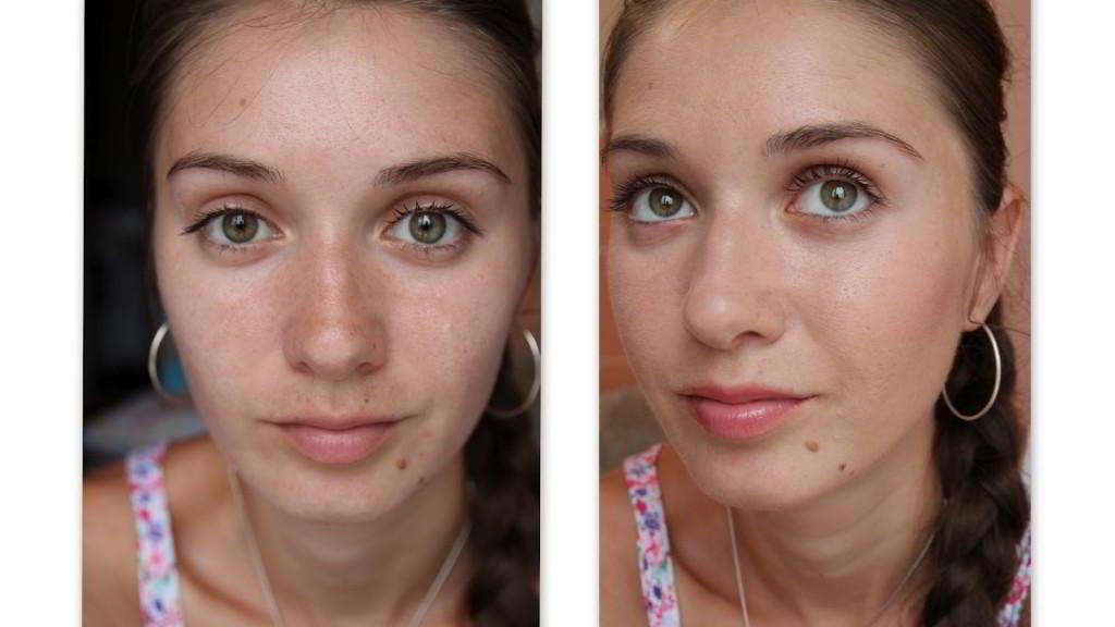 До и после бадяги