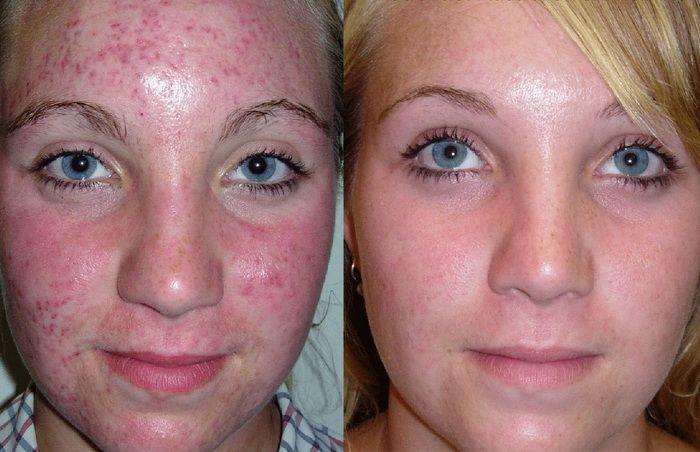 Чистка лица фото до и после