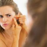 Как лечить угревую сыпь у подростков? Профилактика