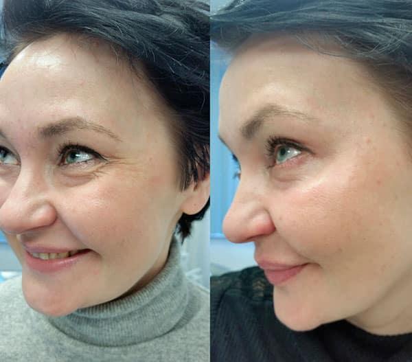 До и после инъекции ботокса