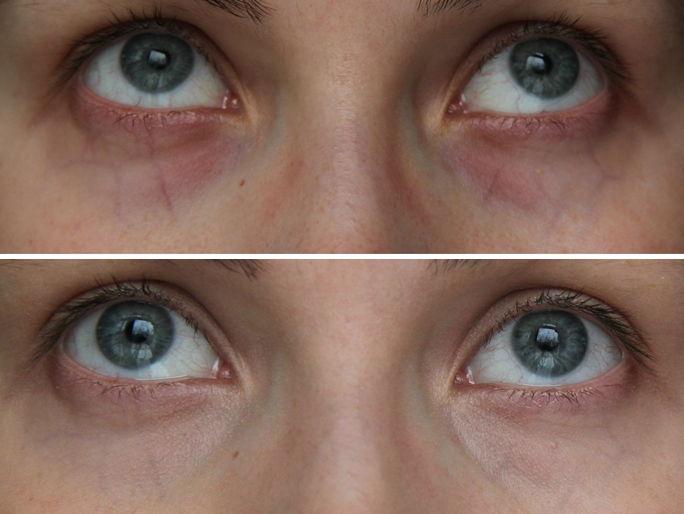 Уход за кожей вокруг глаз как выбрать thumbnail