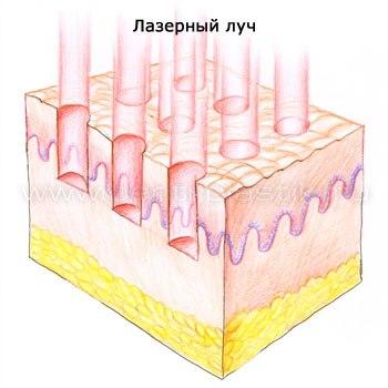 Лазерное омоложение лица