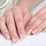Способы лечения дерматита на руках