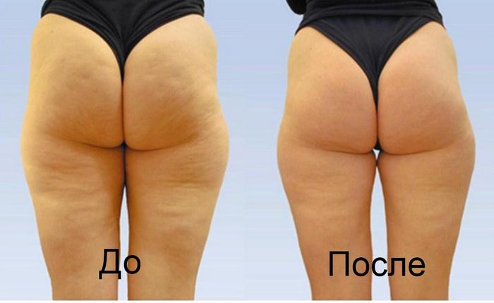 До и после массажа от целлюлита