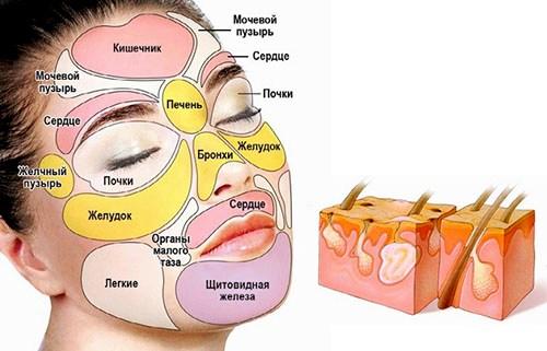 Связь угрей и заболеваний внутренних органов