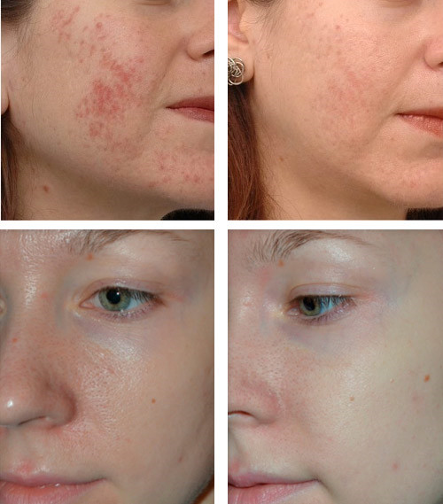 Фото до и после оксигенотерапии