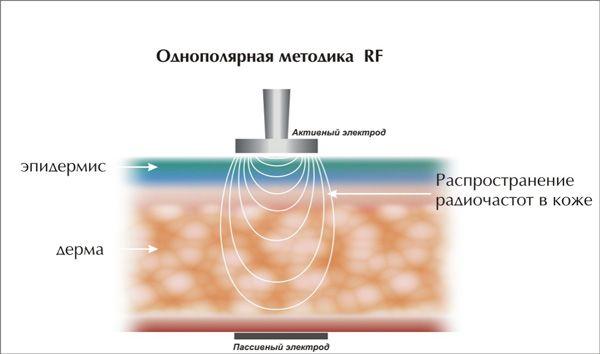 однополярный rf лифтинг