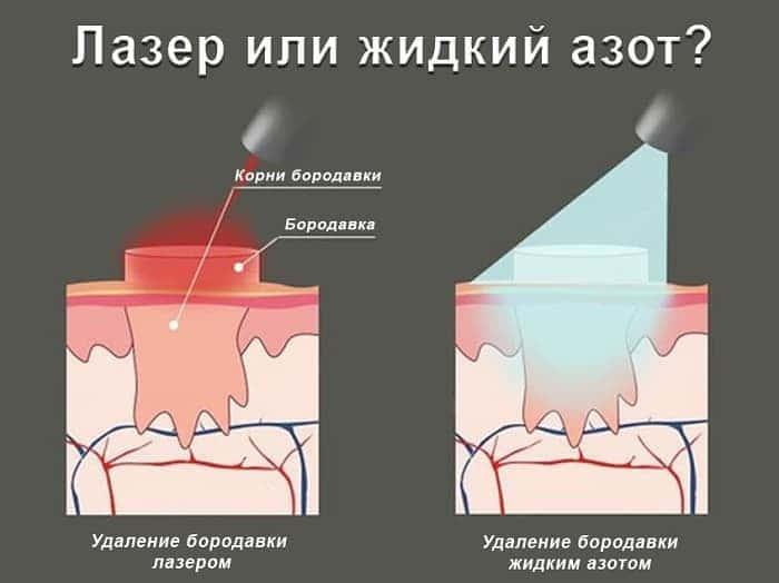Лазер или жидкий азот против бородавок