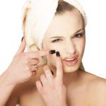 Причины появления угрей на лице