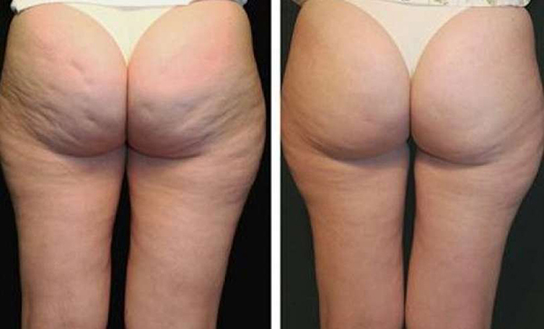 До и после баночного массажа