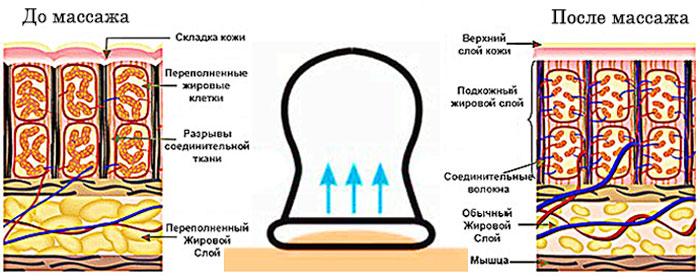 Польза вакуумного массажа
